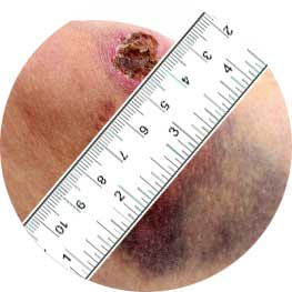 Wound-measurement-circle